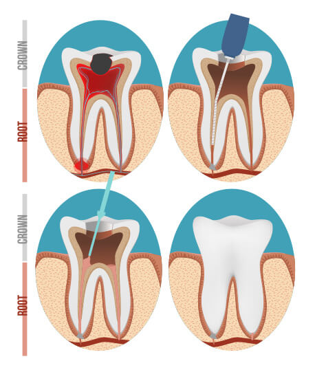 Root Canal Dentist & Treatment Colorado Springs, CO