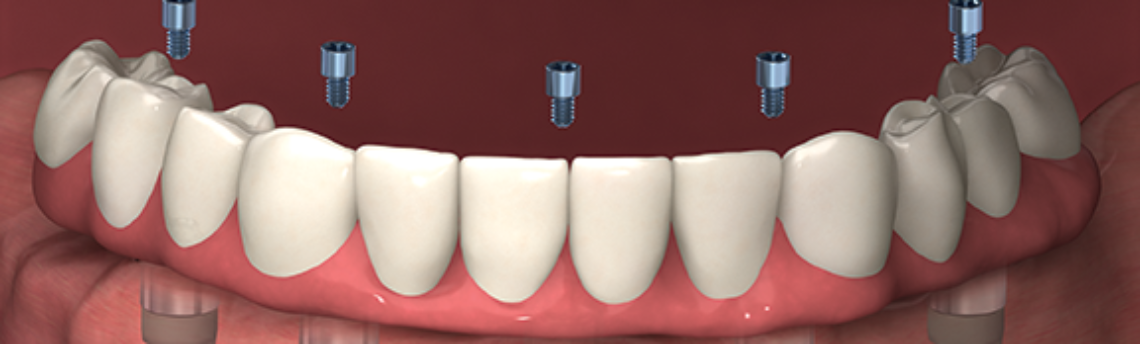 What Are Dental Implants and How Do They Work?