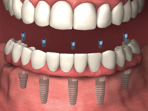What Are Dental Implants And How Do They Work Colorado